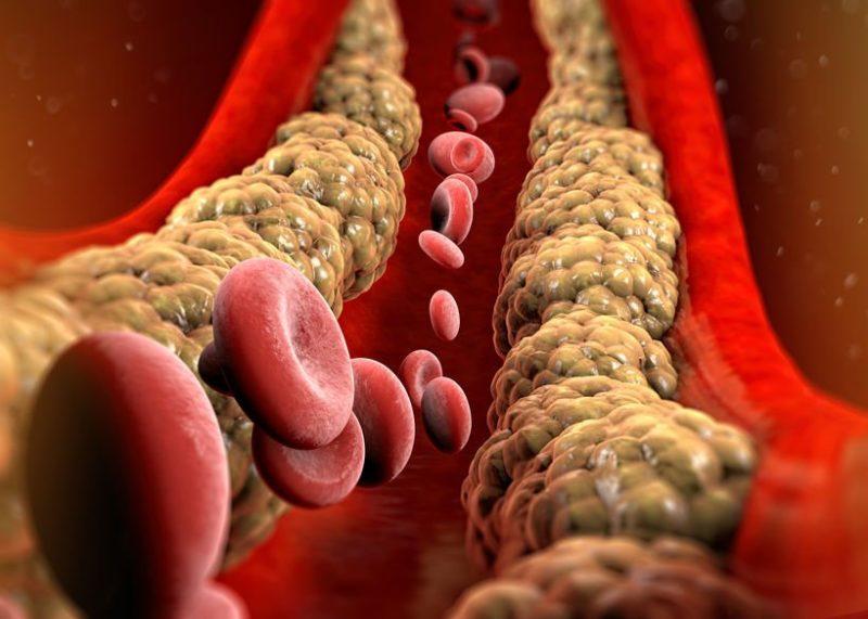 colesterolo scaled
